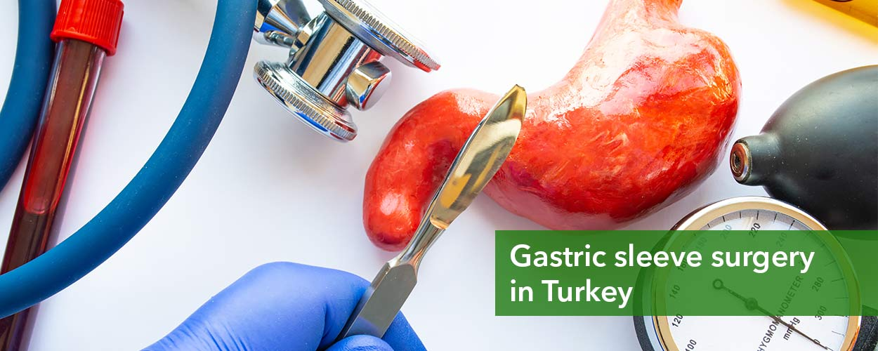 Gastric sleeve surgery in Turkey