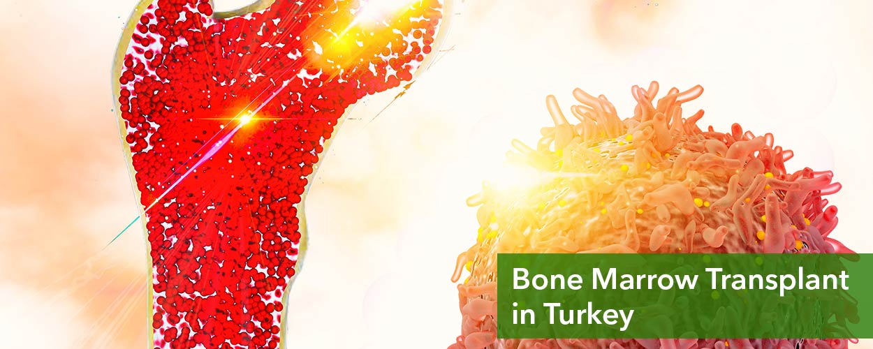 Bone Marrow Transplant in Turkey