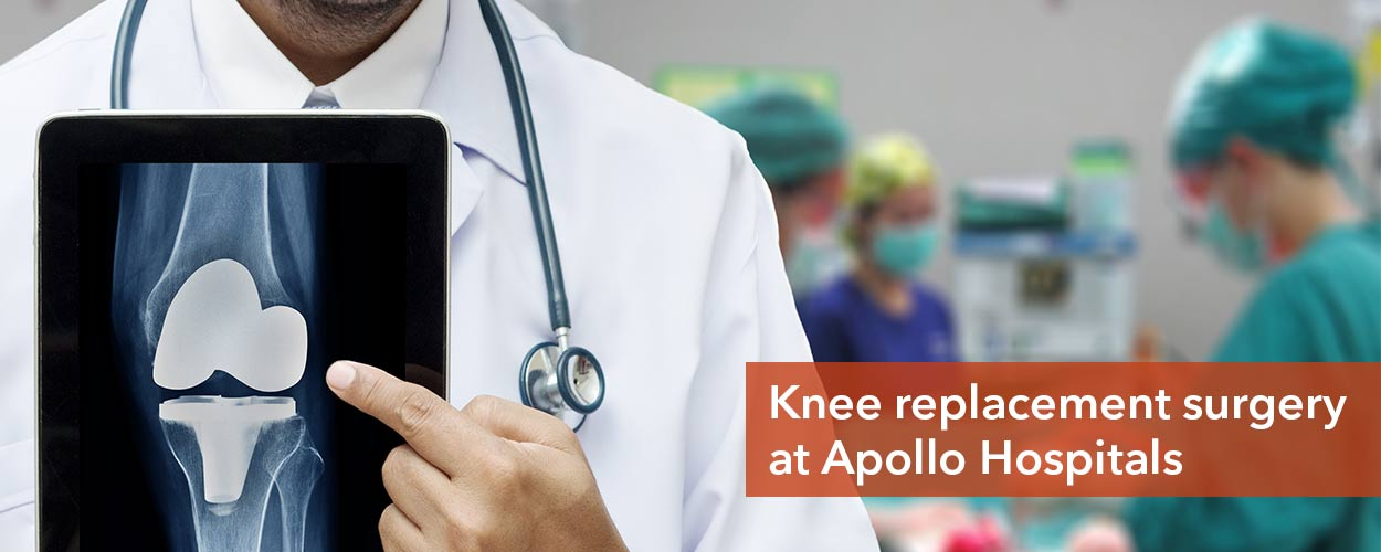 Apollo Knee Replacement