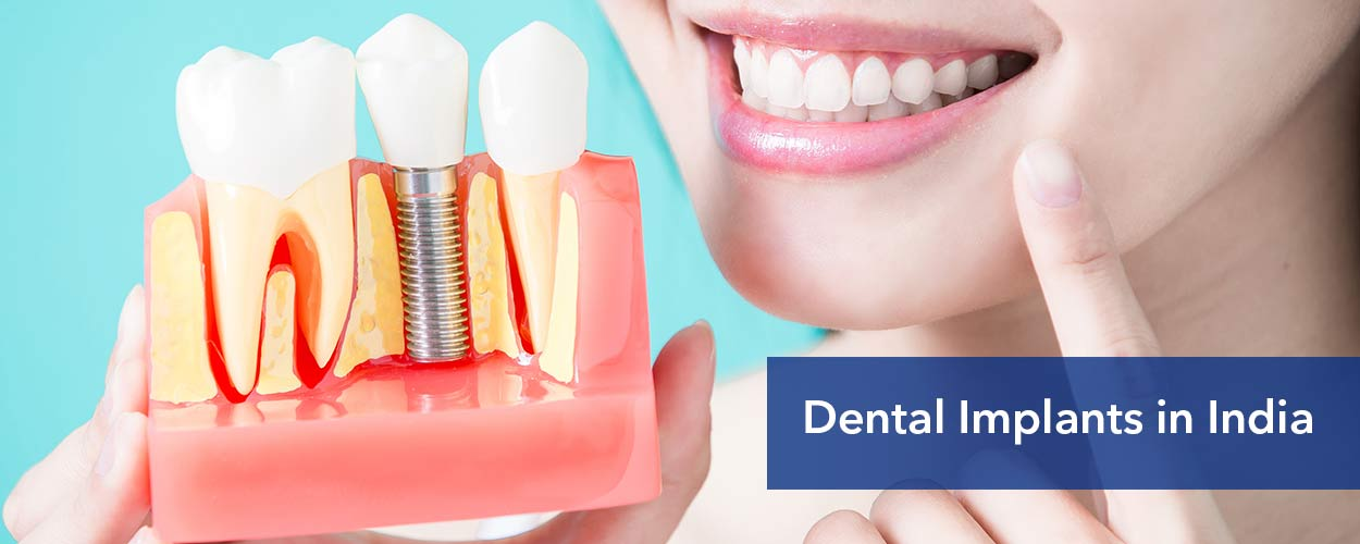 Dental-implants-in-India