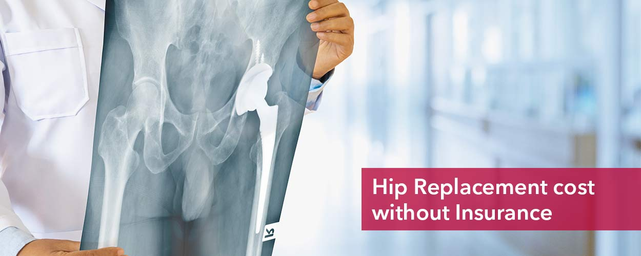 Hip replacement cost without insurance