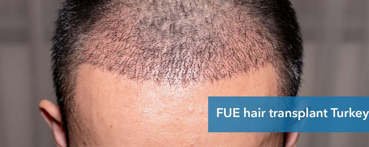 FUE-hair-transplant-Turkey