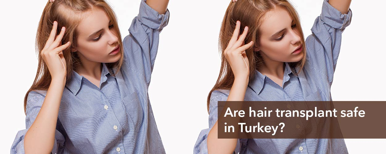 Are hair transplants in Turkey safe?