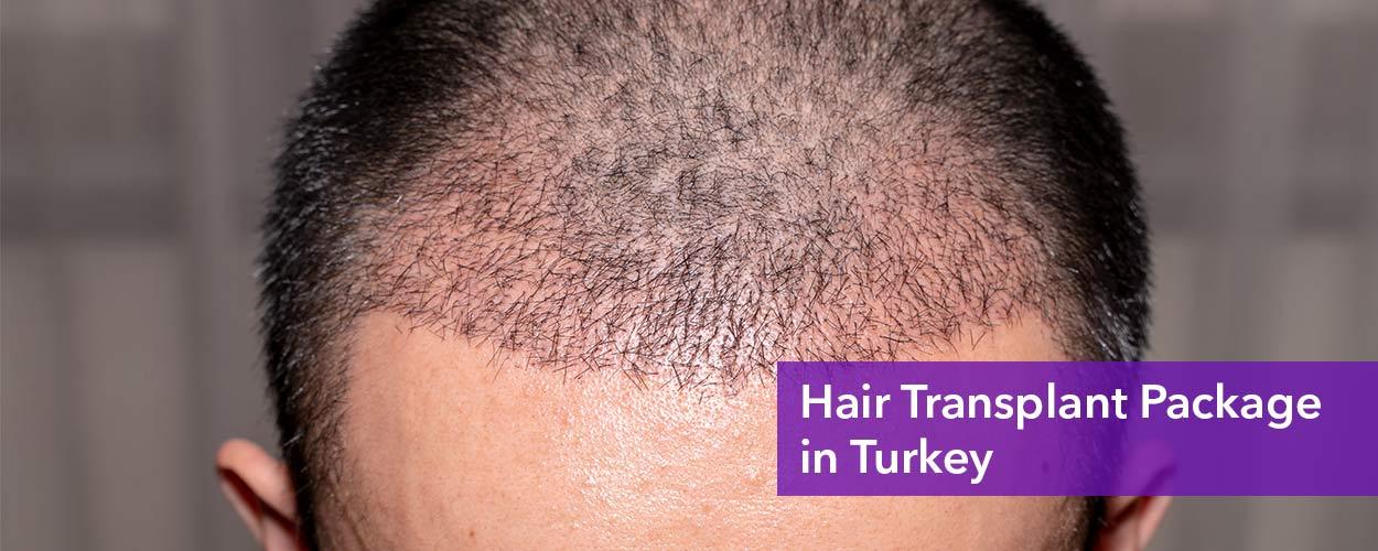 Hair transplant packages in Turkey