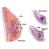 Ductal-Carcinoma-in-Situ-Breast-Cancer