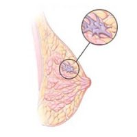 Invasive-Lobular-Carcinoma-Breast-Cancer