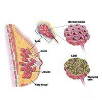 Lobular-Carcinoma-In-Situ-Breast-Cancer