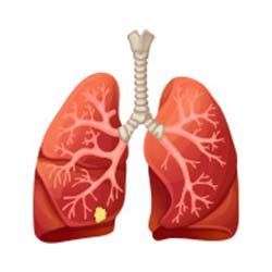 Lung-Cancer-Stage-1