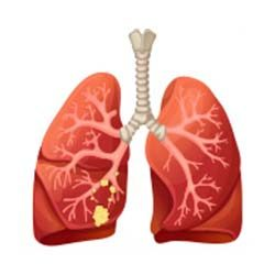 Lung-Cancer-Stage-2