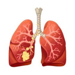 Lung-Cancer-Stage-3