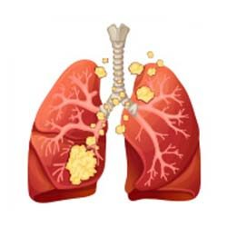 Lung-Cancer-Stage-4