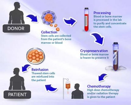 infographics-allogeneic